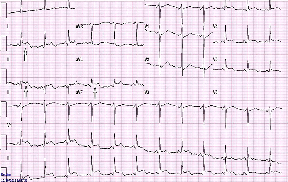 EKG-showing-ST-segment-elevation-in-the-inferior-leads-(*arrows-point-to-ST-elevation-in-the-inferior-leads)