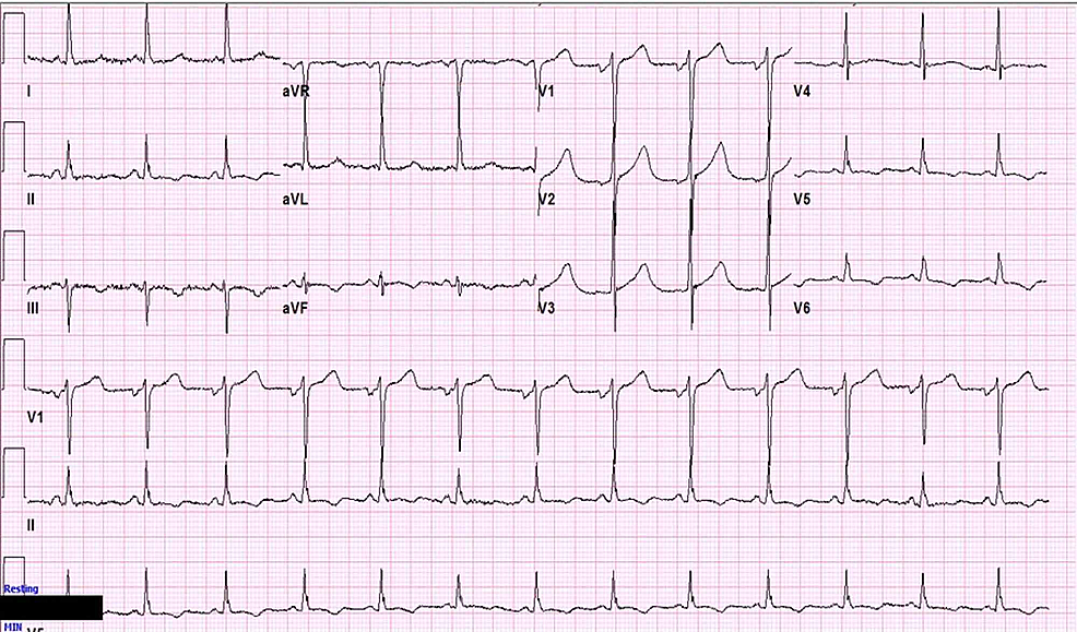 Repeat-EKG-showing-resolution-of-ST-segment-elevations-in-the-inferior-leads