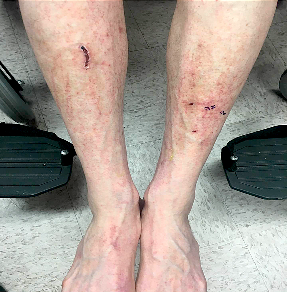 Clinical-manifestation-on-anterior-lower-legs
