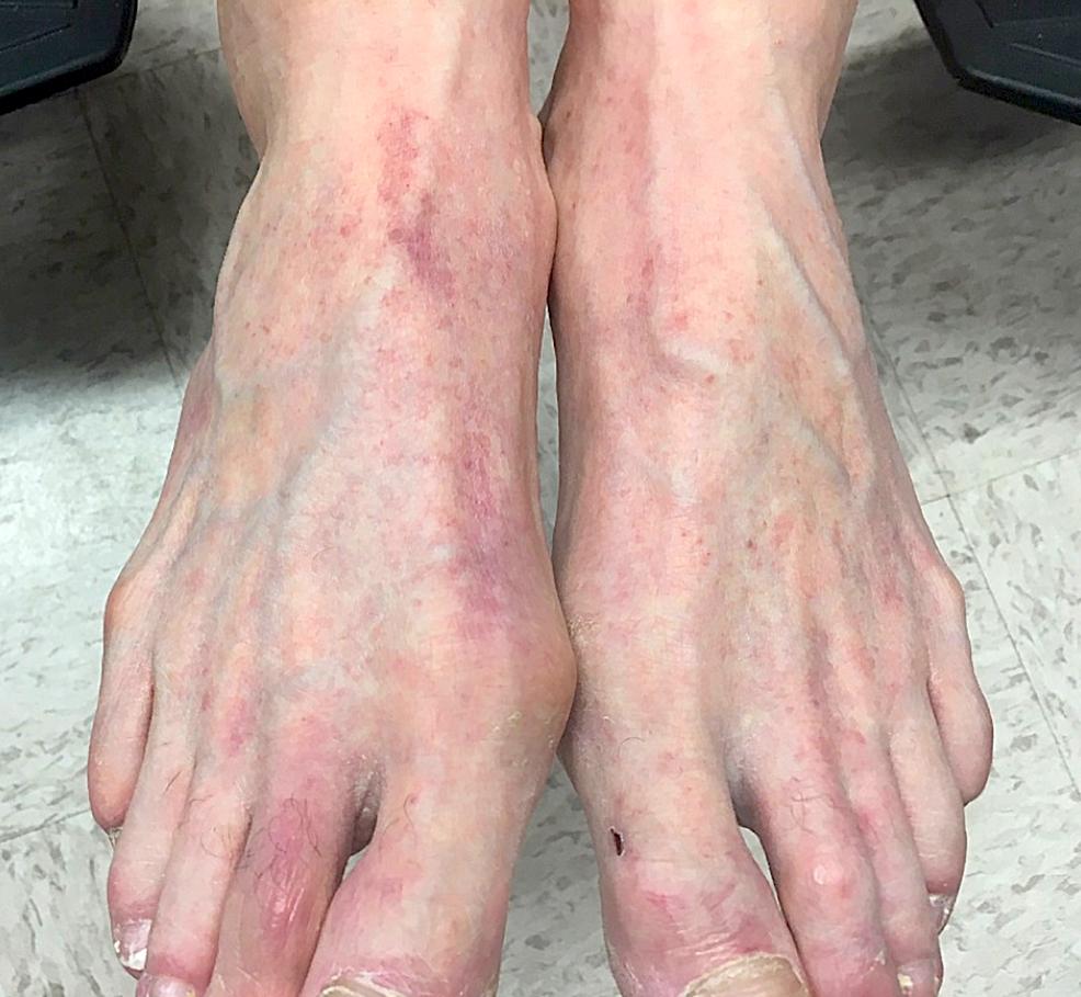 Clinical-manifestation-on-dorsal-feet