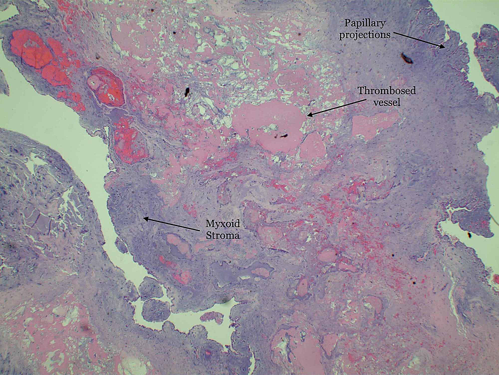 Low-power-magnification-showing-an-abundance-of-mucopolysaccharide-matrix-of-myxoid-stroma-mixed-with-papillary-projections-and-stellate-cells-mixed-with-blood-vessels.-