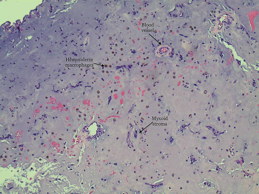 High-power-magnification-showing-hemosiderin-macrophages-with-islands-of-stellate-cells.-