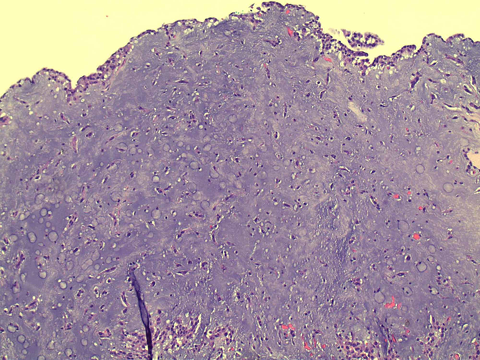 Diffuse-spindle-shaped-stroma-with-mixed-myxoid-cells.