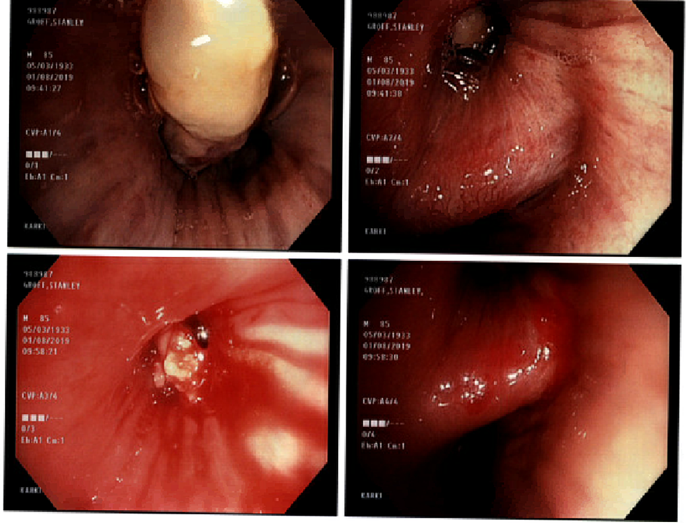 Bronchoscopic-View-of-Tumor