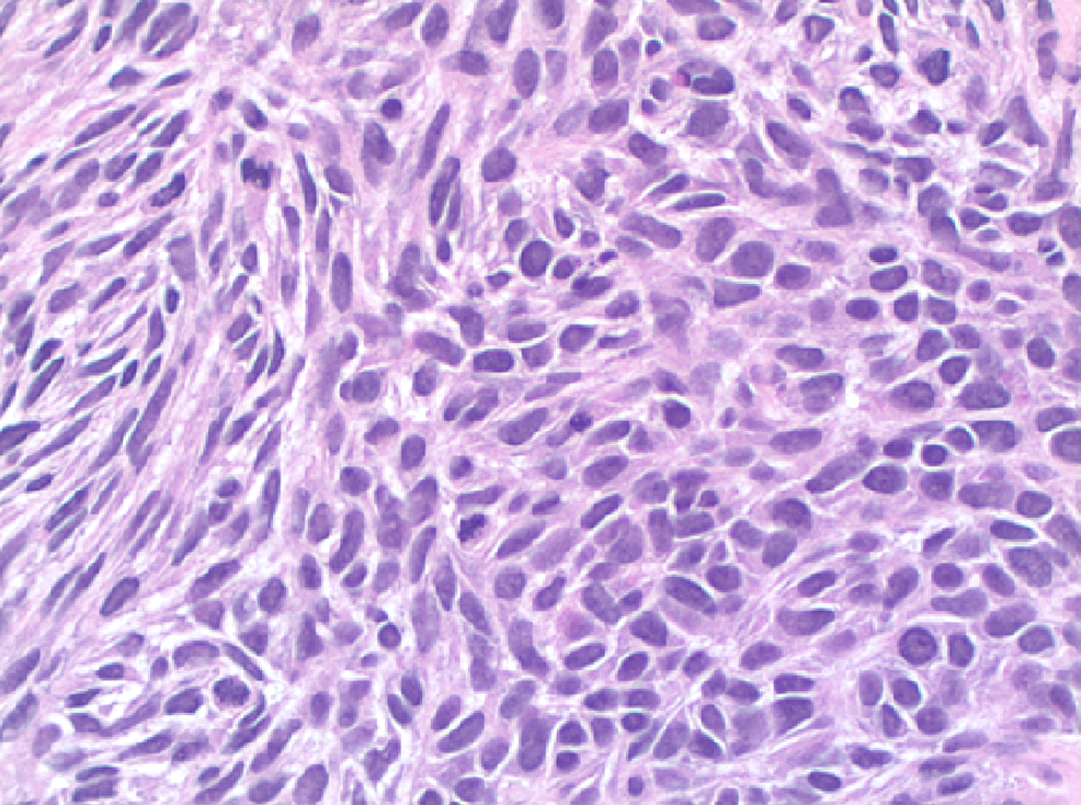 High-Grade-Spindle-Cell-Sarcoma-with-Pleomorphic-Spindle-Cells-and-Increased-Mitoses
