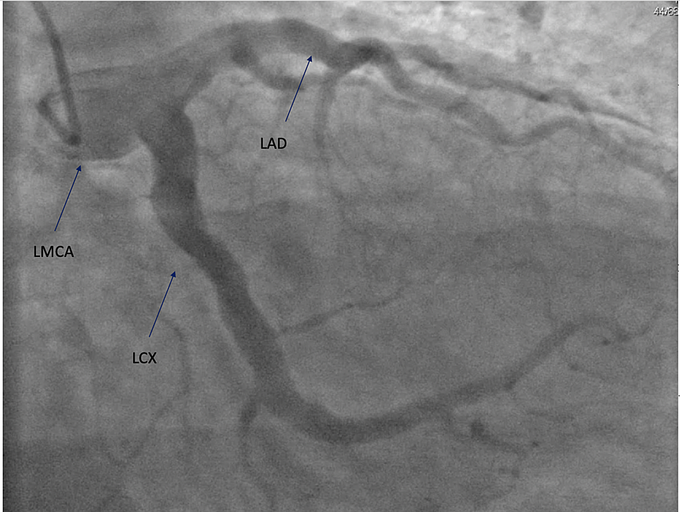 LMCA-showing-large-aneurysmal-dilation.-LAD-and-LCX-coronary-arteries-showing-diffuse-aneurysmal-dilation-affecting-the-entire-length-of-the-vessels.