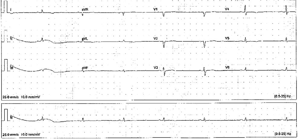 Visit-1-EKG