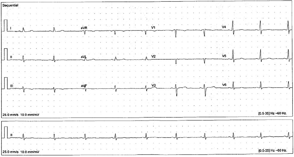 Visit-8-EKG-(20-months-later)