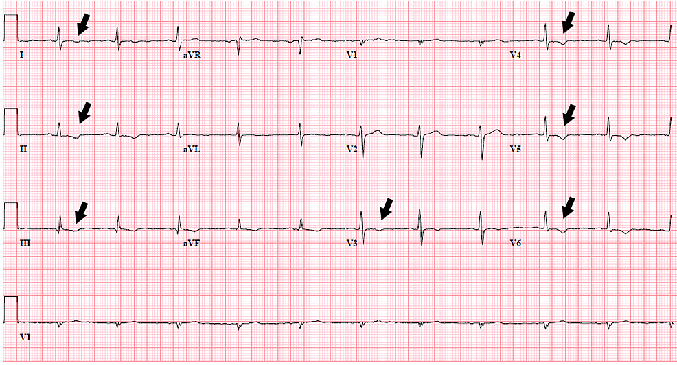 ECG-with-nonspecific-T-wave-changes