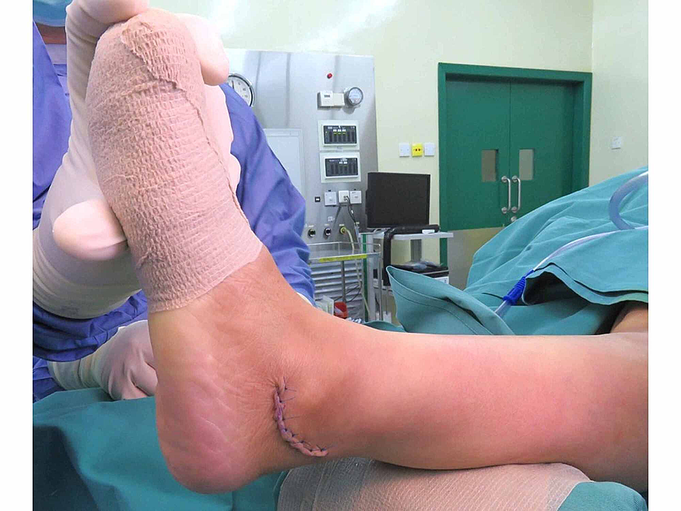 The-ankle-after-closure-of-the-wound;-the-position-of-the-ankle-was-maintained-in-a-10°-eversion.