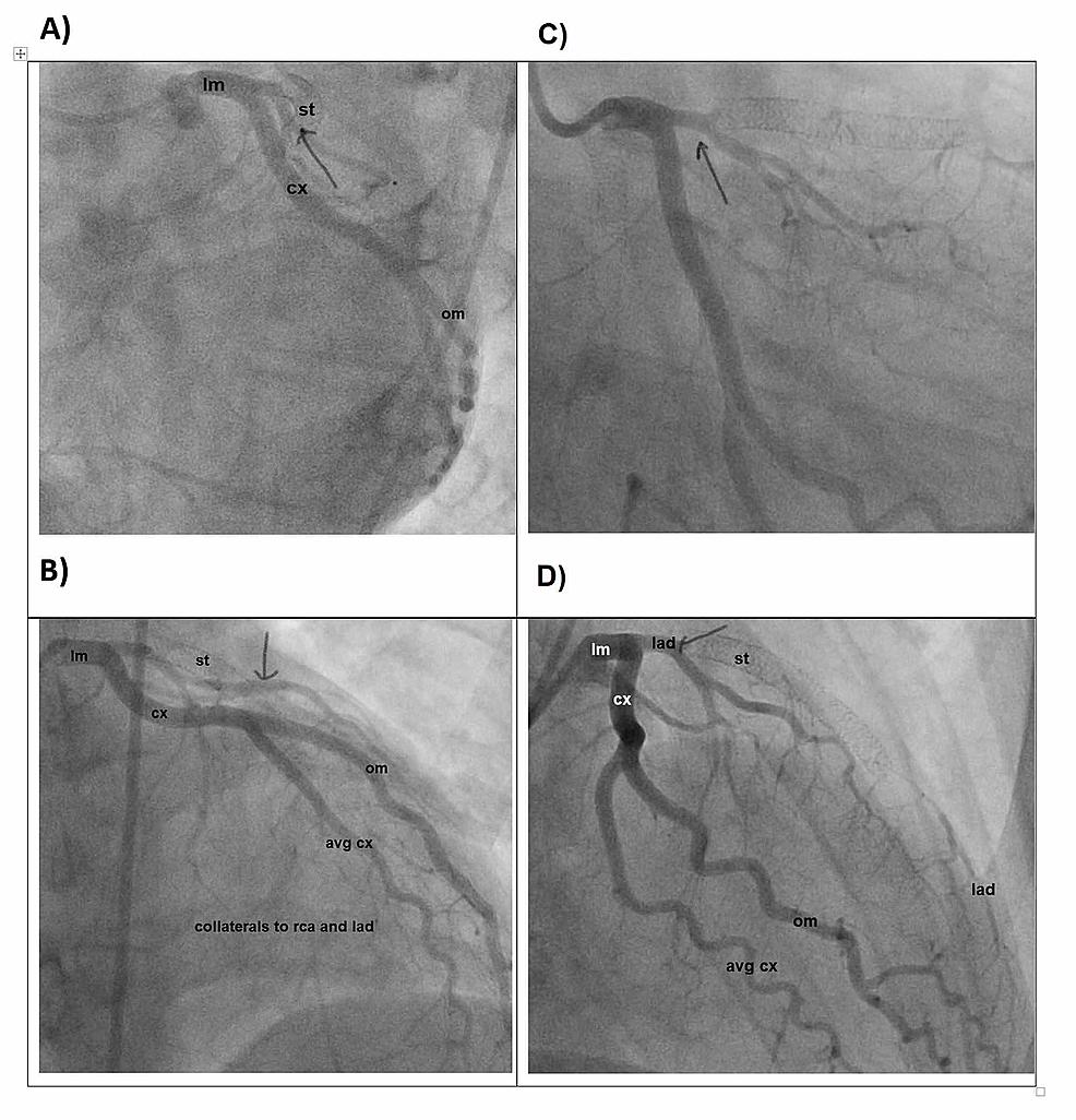 Cardiac-catheterization-demonstrating-the-LAD
