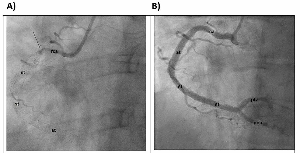 Cardiac-catheterization-demonstrating-the-RCA