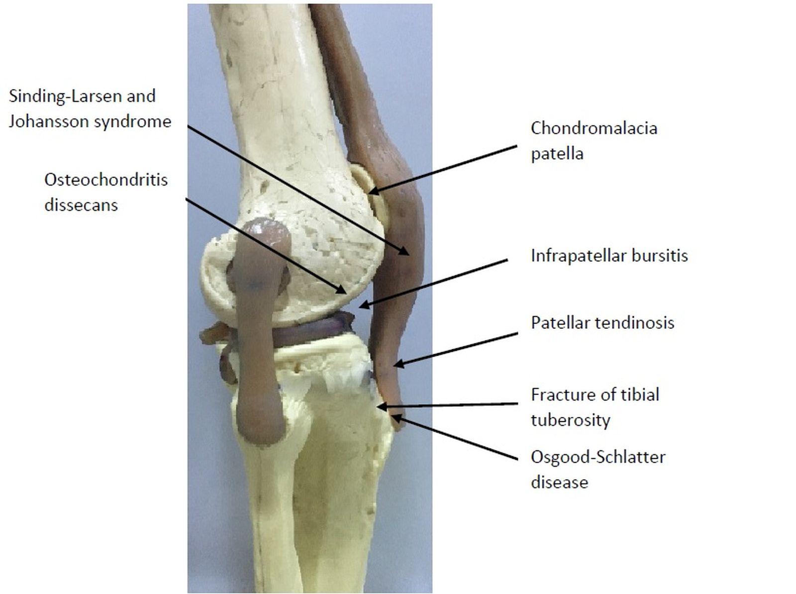 Cureus | Apophysitis of the Tibial Tuberosity (Osgood