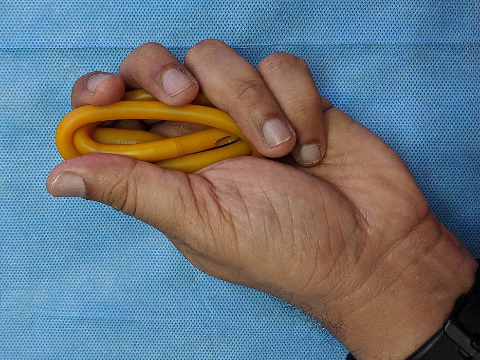 Looping-the-catheter-over-itself,-in-preparation-for-inserting-it-into-the-cut-glove-finger.