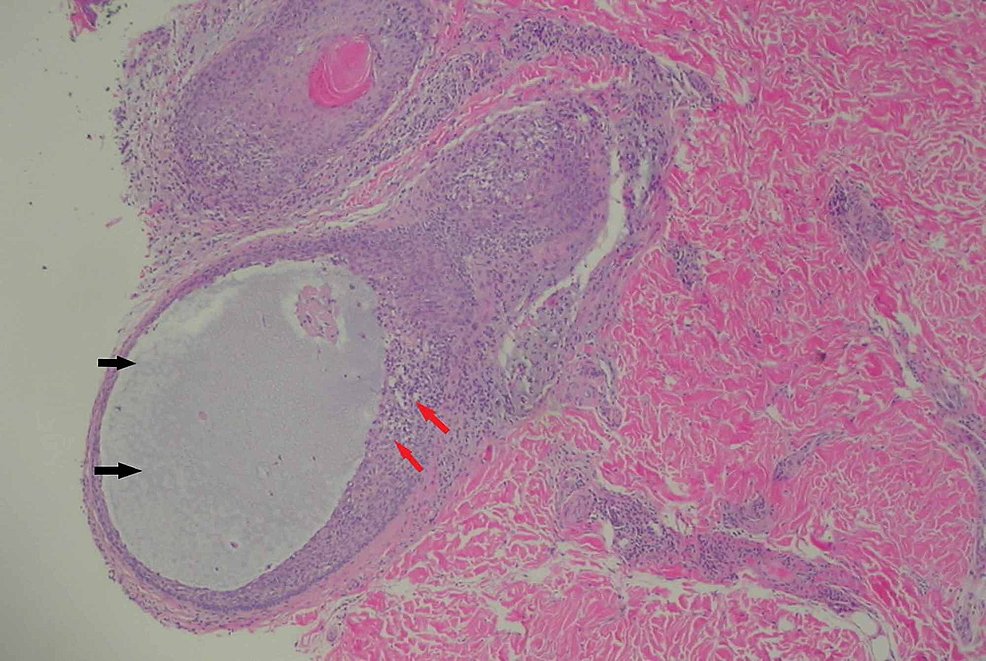 Histological-section-showing-a-degenerated-follicle-filled-with-mucin-(black-arrows)-with-perifollicular-chronic-infiltrates-(red-arrows).