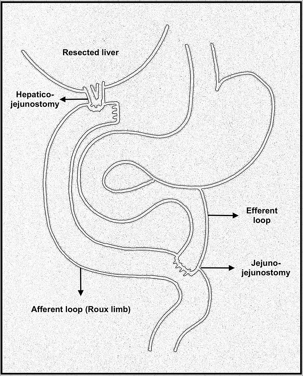 A-sketch-depicting-a-Roux-en-Y-hepatico-jejunostomy.-