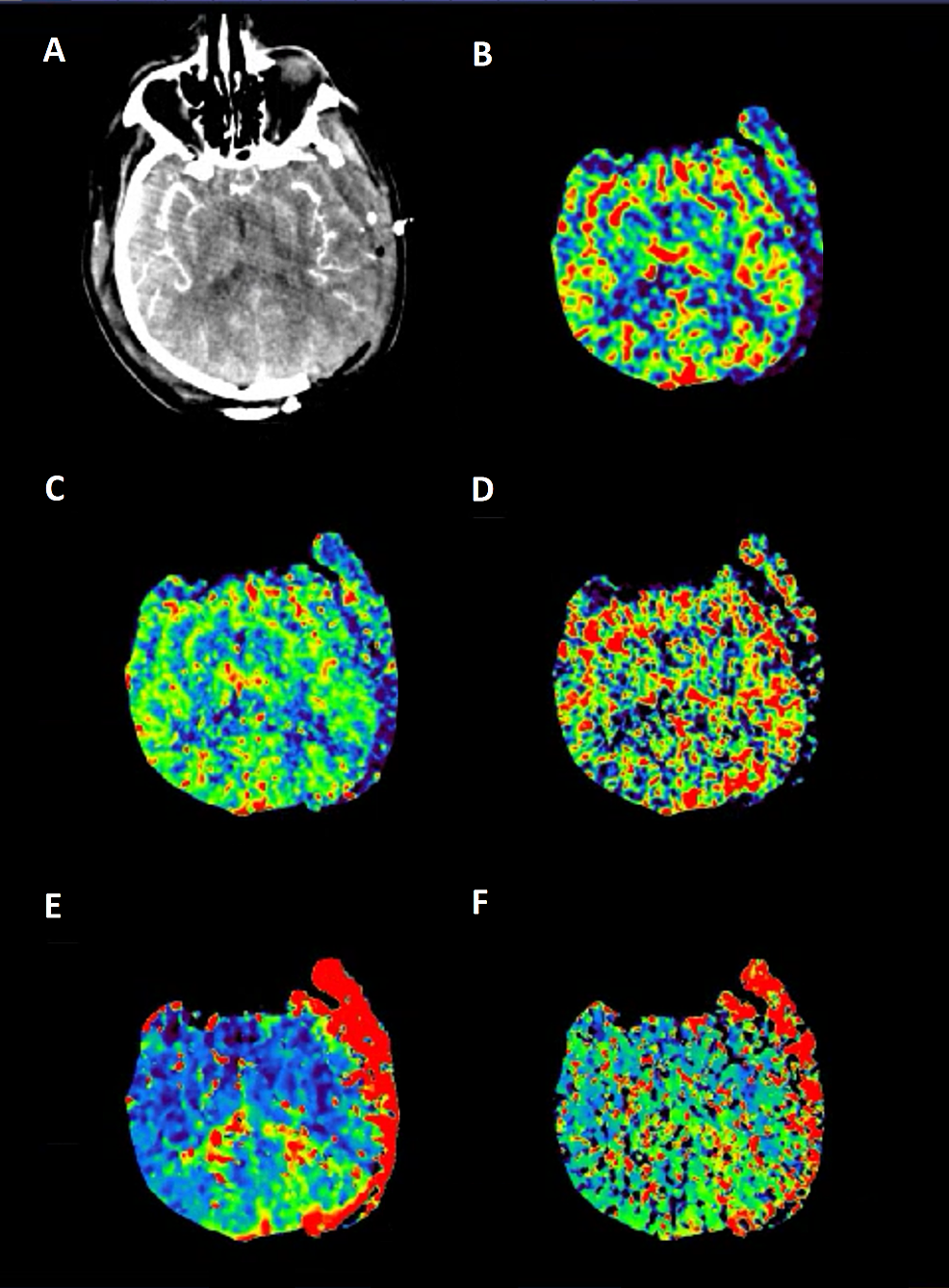 Computed-tomography-perfusion-demonstrating-(from-left-to-right)-(A)-CTA,-(B)-CBV,-(C)-CBF,-(D)-MTT,-(E)-TTP,-and-(F)-delay
