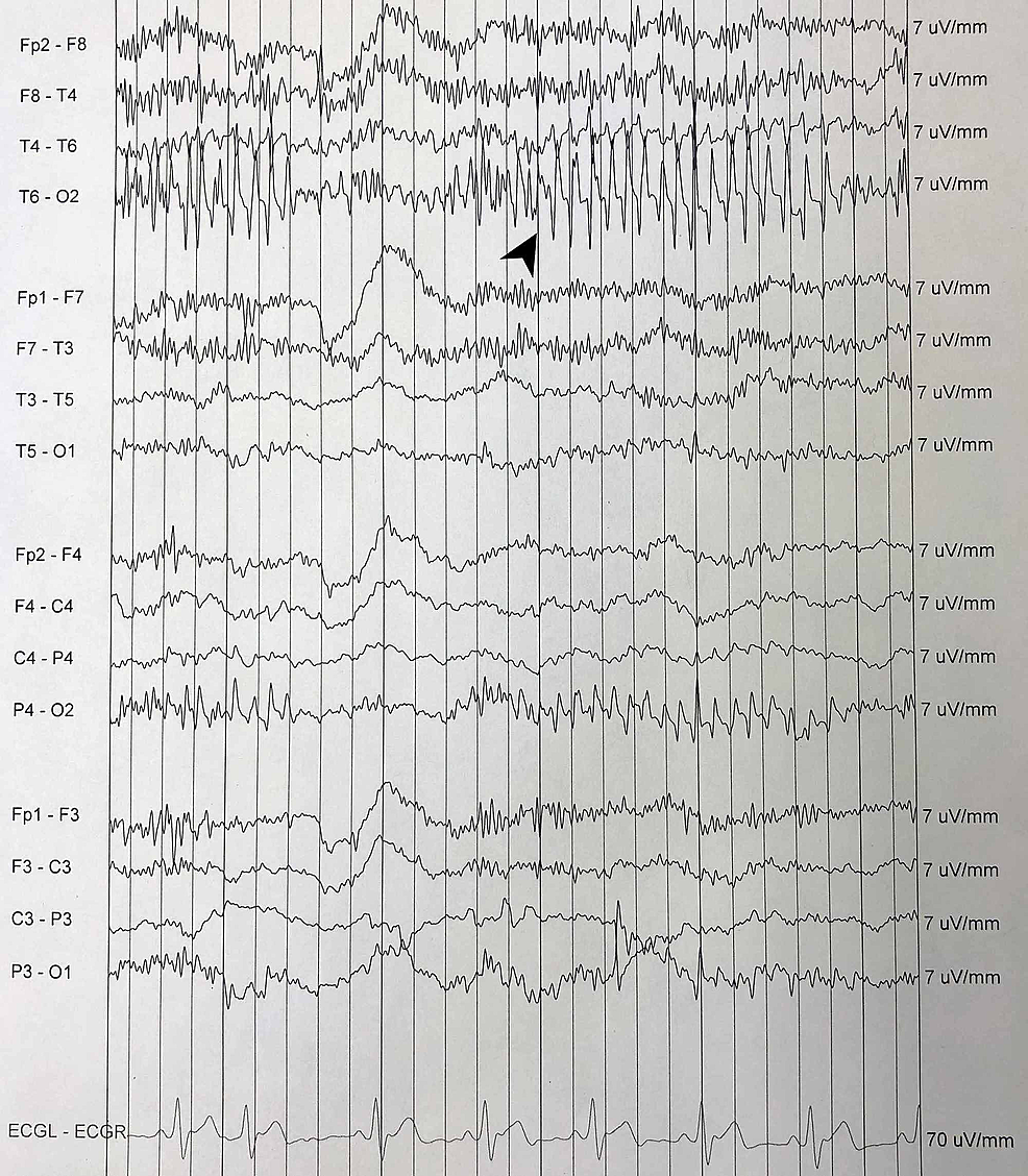 EEG-from-a-routine-portable-encephalography-(using-10-20-recording)-showing-superimposed-spike-activity-(black-arrow)-over-background-slowing.