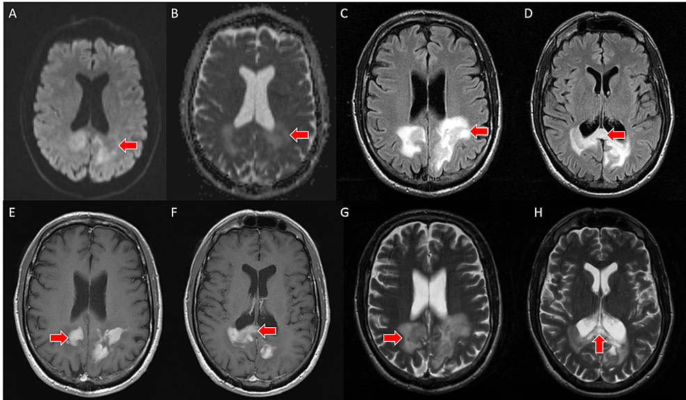 A---brain-MRI-with-DWI-sequence-demonstrates-mild-restricted-water-diffusion-associated-with-a-mass-in-the-bilateral-parietal-lobes-and-splenium-(red-arrow).-B---brain-MRI-with-ADC-mapping-demonstrates-mild-restricted-water-diffusion-associated-with-a-mass-in-the-bilateral-parietal-lobes-and-splenium-(red-arrow).-C,-D---axial-slices-from-brain-MRI-with-FLAIR-sequence-demonstrates-perilesional-vasogenic-edema-within-the-splenium-of-the-corpus-callosum-and-in-the-adjacent-parietal-lobes-(red-arrows).-E,-F---axial-slices-from-brain-MRI-with-T1-weighted-post-contrast-sequence-demonstrate-discontinuous,-homogeneous-enhancement-(red-arrows).-G,-H---axial-slices-from-brain-MRI-with-T2-sequence-demonstrate-an-isointense-mass-in-the-splenium-of-the-corpus-callosum-and-in-the-adjacent-parietal-lobes-with-surrounding-vasogenic-edema-(red-arrows)