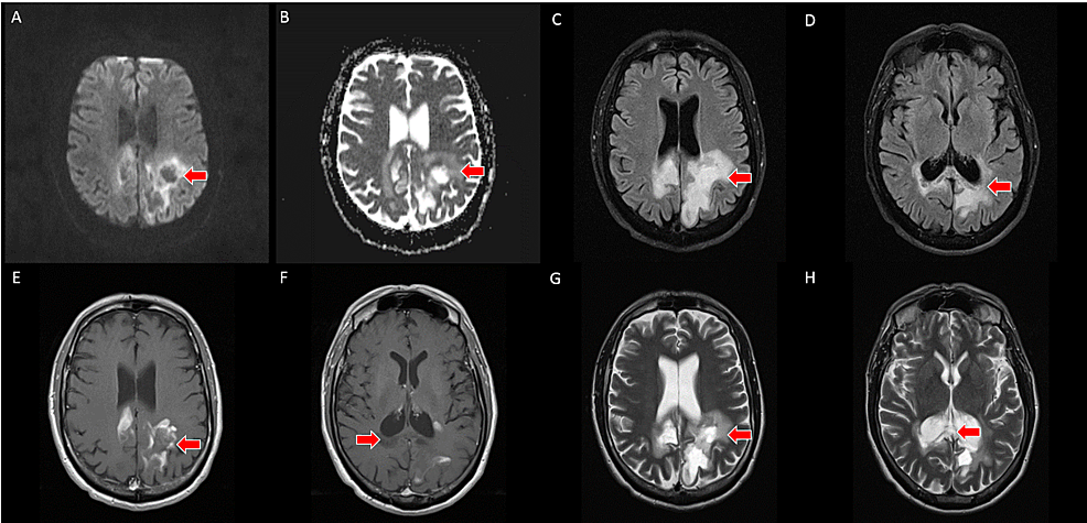 A,-B---axial-slices-from-three-month-follow-up-brain-MRI-with-provided-DWI/ADC-sequences-(top-left)-demonstrate-T2-shine-through-without-restricted-water-diffusion-(red-arrows)-in-the-region-of-previously-seen-restricted-water-diffusion.-C,-D---axial-slices-from-three-month-follow-up-brain-MRI-with-FLAIR-sequences-demonstrate-necrosis-and-cystic-change-within-the-corpus-callosum-and-subcortical-white-matter-of-the-bilateral-parietal-lobes-(red-arrows).-E,-F---axial-slices-from-three-month-follow-up-T1-weighted-post-contrast-brain-MRI-demonstrate-resolution-of-the-homogeneous-enhancement-with-an-incomplete,-peripheral-enhancement-pattern.-G,-H---axial-slices-from-three-month-follow-up-brain-MRI-with-T2-weighting-demonstrate-necrosis-and-cystic-change-within-the-corpus-callosum-and-subcortical-white-matter-of-the-bilateral-parietal-lobes-(red-arrows)