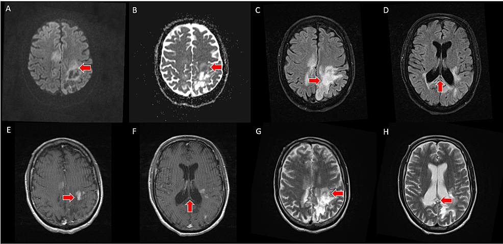 A,-B---axial-slices-from-five-month-follow-up-brain-MRI-demonstrates-lack-of-restricted-diffusion-on-DWI/ADC.-C,-D---axial-slices-from-five-month-follow-up-brain-MRI-with-FLAIR-sequence-demonstrate-increased-necrosis-and-cystic-change.-E,-F---axial-slices-from-five-month-follow-up-contrast-enhanced-T1-weighted-brain-MRI-demonstrate-a-scattered,-leading-edge-enhancement-pattern.-G,-H---axial-slices-from-five-month-follow-up-T2-weighted-brain-MRI-demonstrate-increased-necrosis-and-cystic-change