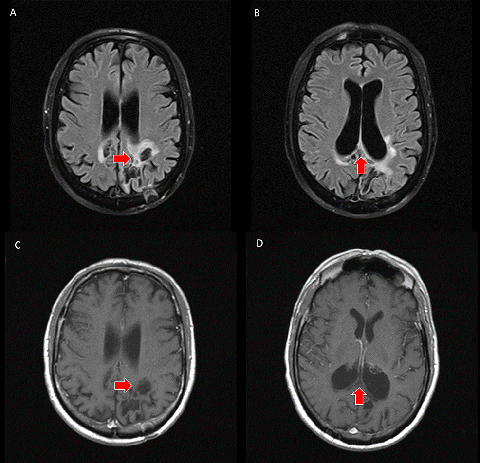 A,-B---axial-slices-from-brain-MRI-following-chemotherapy-with-FLAIR-weighted-sequence-demonstrates-decreased-volume-of-the-lesion-(red-arrows).-C,-D---axial-slices-from-brain-MRI-following-chemotherapy-with-T1-weighted-pre-and-post-contrast-sequences-demonstrate-resolution-of-the-previously-seen-enhancement-(red-arrows)