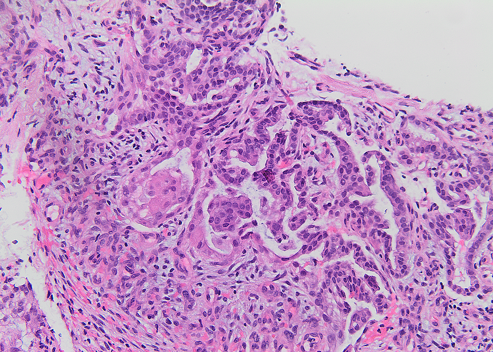 Examination-of-the-lung-biopsy.