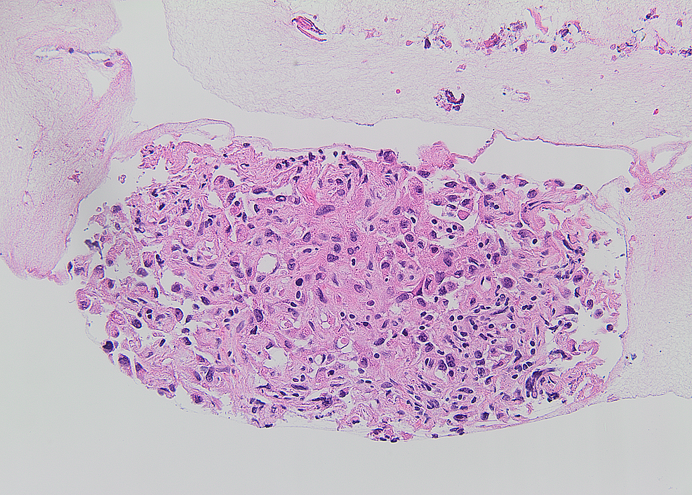 Several-lymph-nodes-demonstrated-poorly-differentiated,-metastatic,-non-small-cell-carcinoma,-composed-of-tumor-cells-with-high-nuclear-pleomorphism-within-a-fibrotic-background.-Tumor-necrosis-was-also-present.
