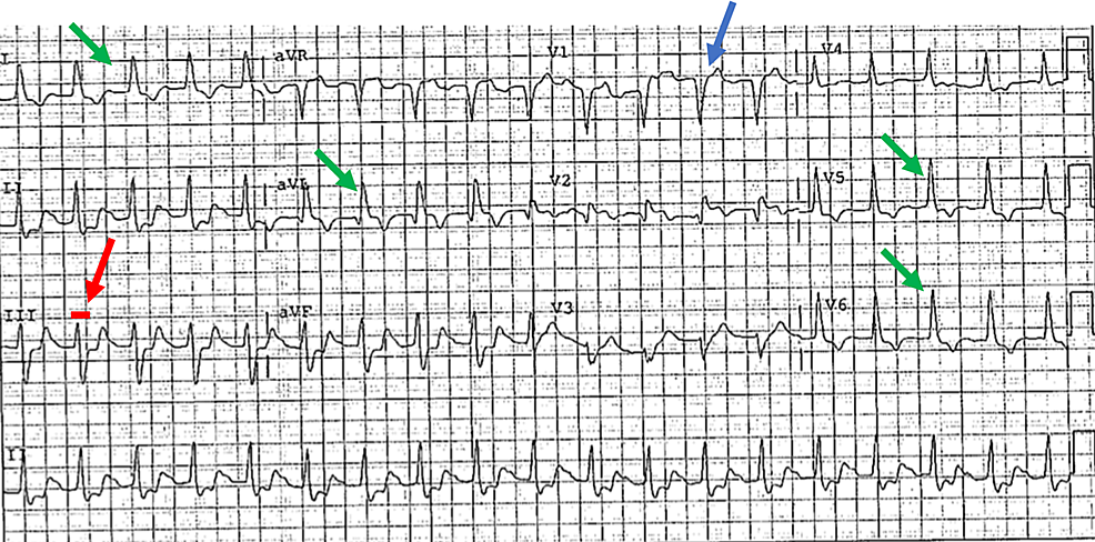 ECG-revealing-a-new-LBBB-evidenced-by:-QRS-duration-of->120-ms-(red-arrow),-lead-V1-with-a-dominant-deep-S-wave-(blue-arrow),-broad,-monophasic-R-wave-in-the-lateral-leads-with-absence-of-Q-waves-(except-aVL)-(green-arrows).