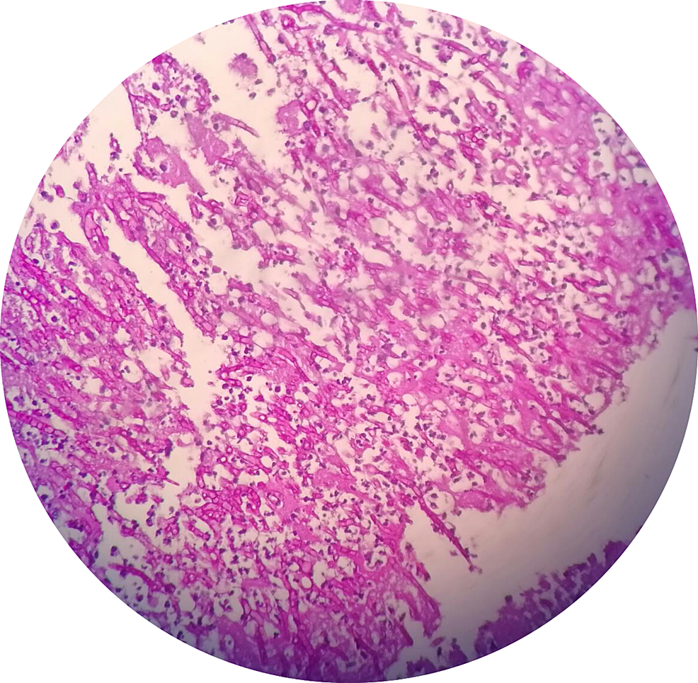 Histological-examination-showing-numerous-septate-and-branching-fungal-hyphae-consistent-with-Aspergillus-species.