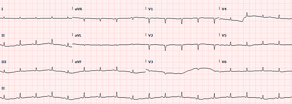 Electrocardiogram-(EKG)-showing-electrical-alternans-and-low-voltage-complexes
