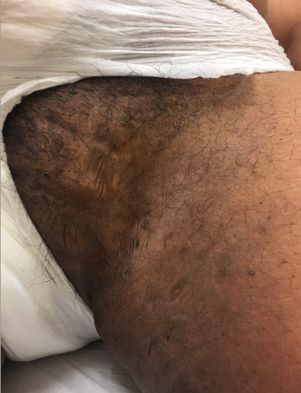 Hidradenitis-suppurativa-manifesting-as-hyperpigmented-scars-and-nodules-on-the-groin-fold-and-inner-thigh-