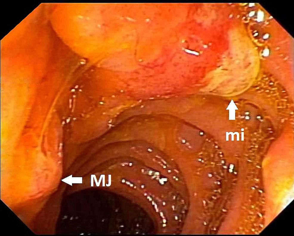 Bulging-minor-papilla-(mi)-before-sphincterotomy-and-normal-appearing-major-papilla-(MJ)