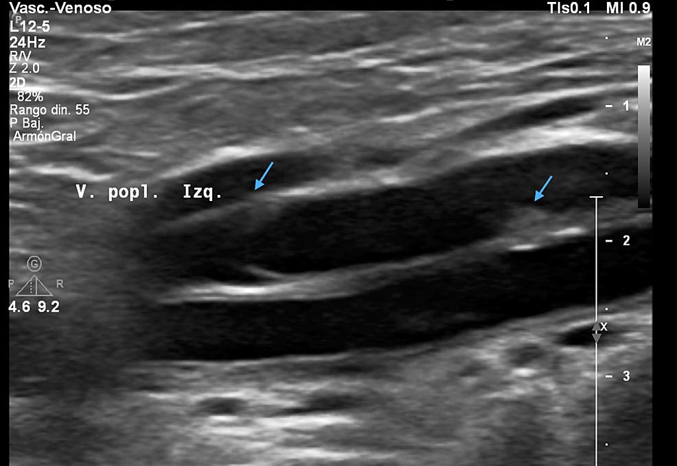 Deep-vein-thrombosis-of-the-left-popliteal-vein