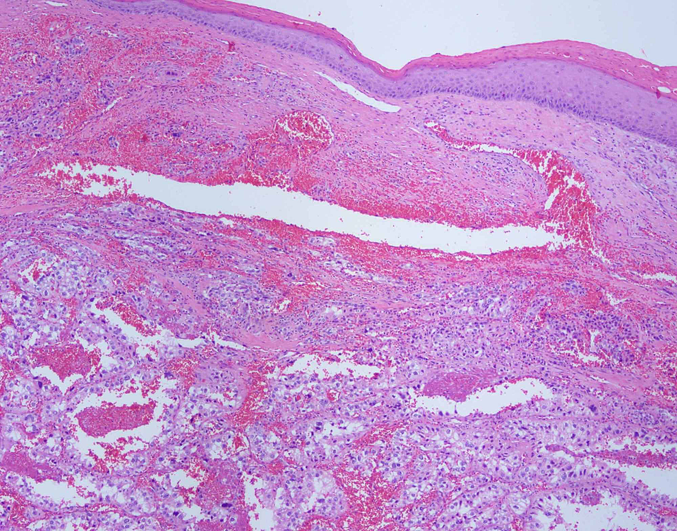 Eosin-and-hematoxylin-stain-of-the-metastatic-cutaneous-nodule-with-40X-magnification.