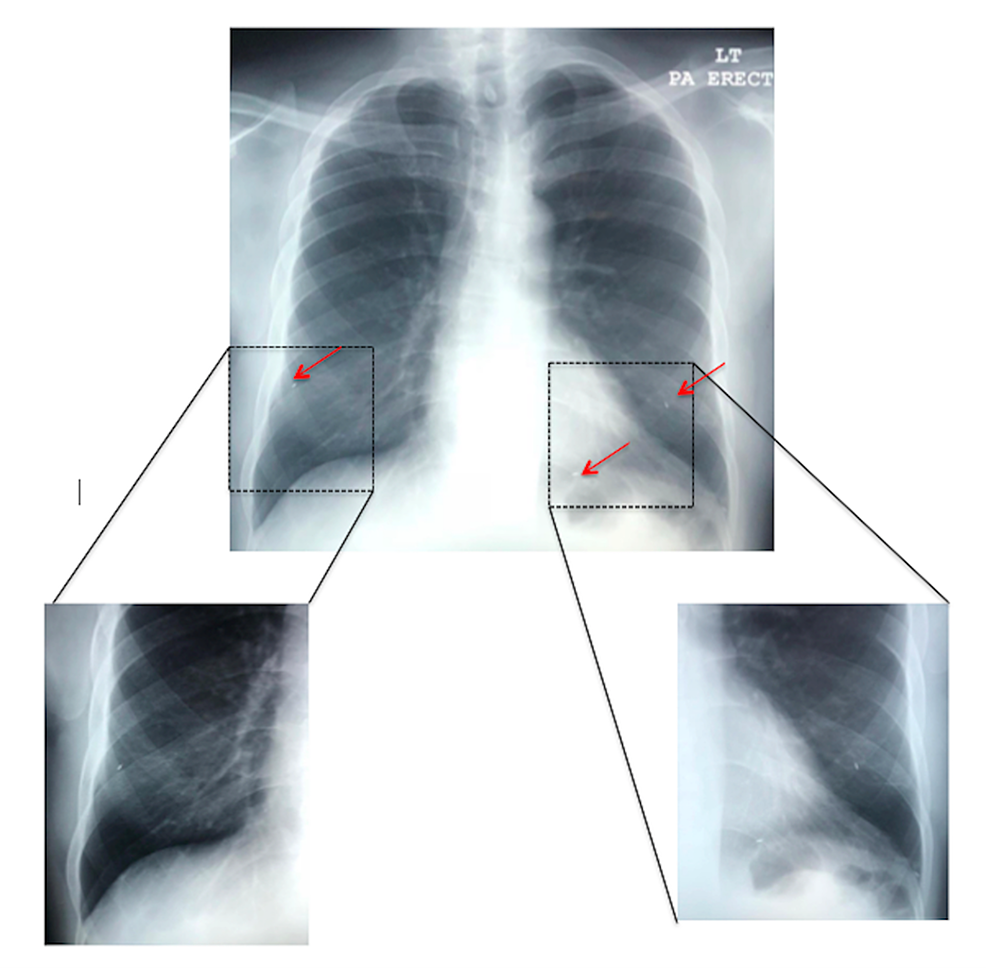 Frontal-(posterior-to-anterior-technique)-chest-radiograph-demonstrating-three-migrated-brachytherapy-seeds-in-the-lower-lung-zones-bilaterally-(red-arrows).