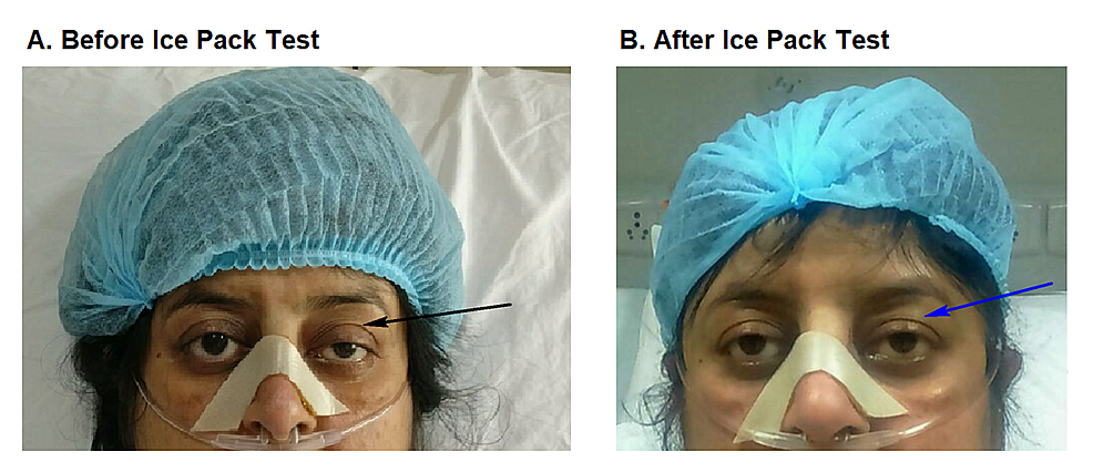 Ice-Pack-Test