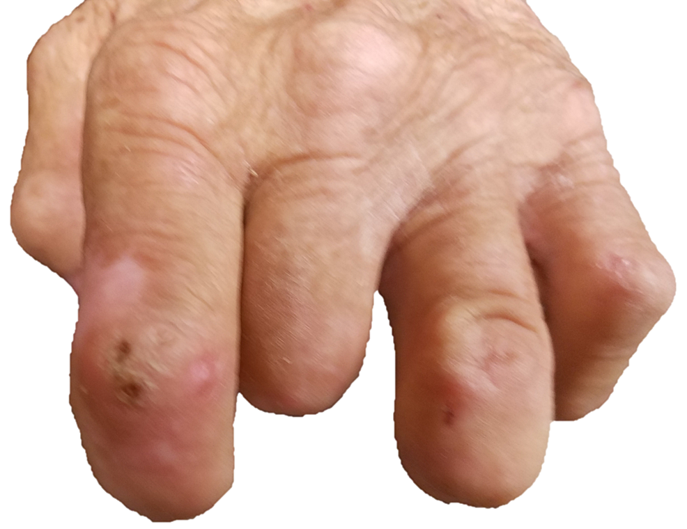 Left-hand-with-well-healed-amputations-of-index,-middle,-and-ring-fingers.