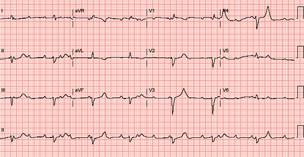 Electrocardiogram-showing-complete-atrioventricular-block