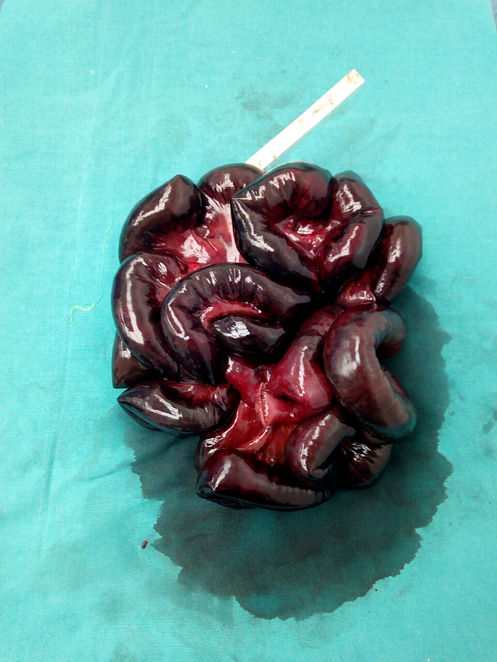 Approximately-250-cm-of-resected-gangrenous-small-bowel.