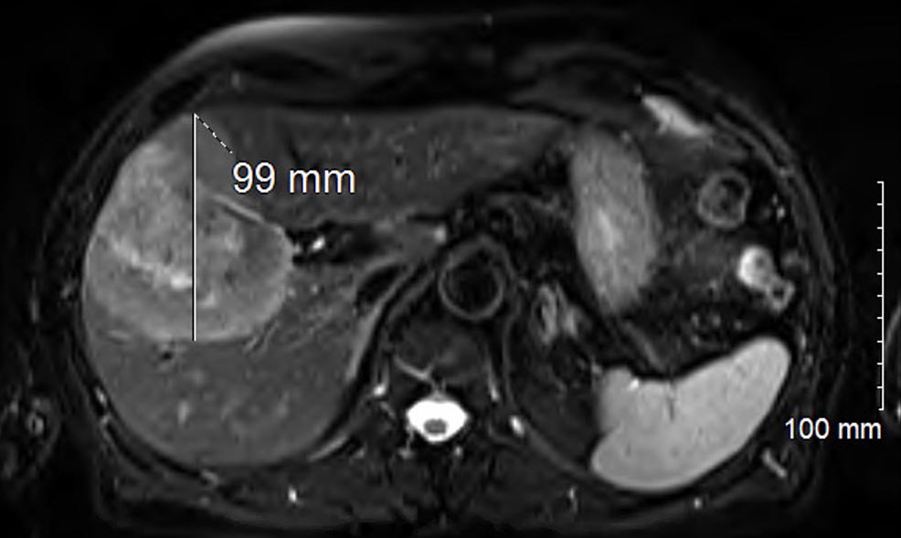 MRI-abdomen-showing-enhancing-mass-with-necrotic-center