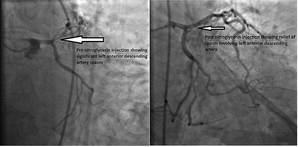 Angiogram-images-of-LAD-showing-relief-of-vasospasm-post-nitroglycerin-injection-