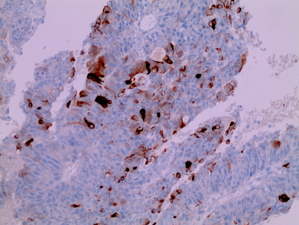 Penile-mass-with-immunohistochemical-staining-demonstrating-positive-staining-for-CK20,-confirming-gastrointestinal-adenocarcinoma-(high-power)