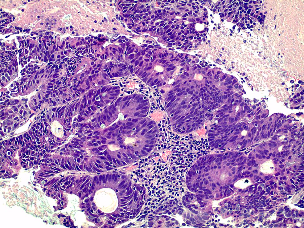 Penile-mass-demonstrating-high-grade-invasive-adenocarcinoma-(Hematoxylin-and-eosin,-high-power)