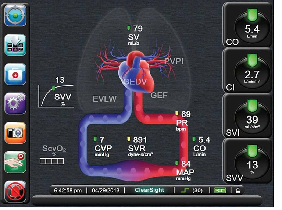 Flotrac/Vigileo-system-using-data-from-arterial-line-and-central-venous-line-to-calculate-various-hemodynamic-parameters-(stock-image-taken-from-Edwards.com)