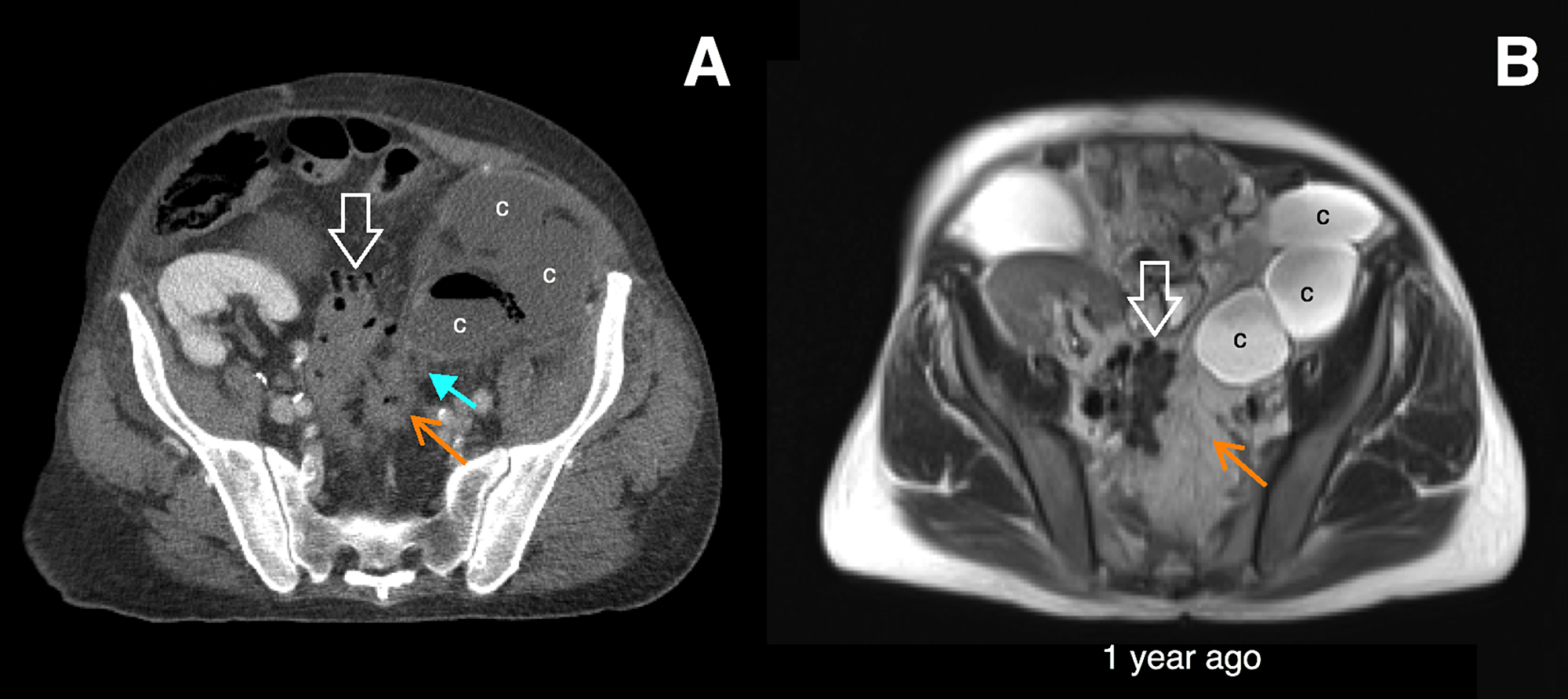 Cureus Rupture Of An Infected Renal Cyst Secondary To A Renocolic Fistula In Autosomal Dominant Polycystic Kidney Disease