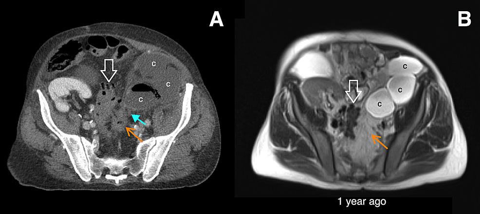 Initial-imaging-of-the-cyst-infection.