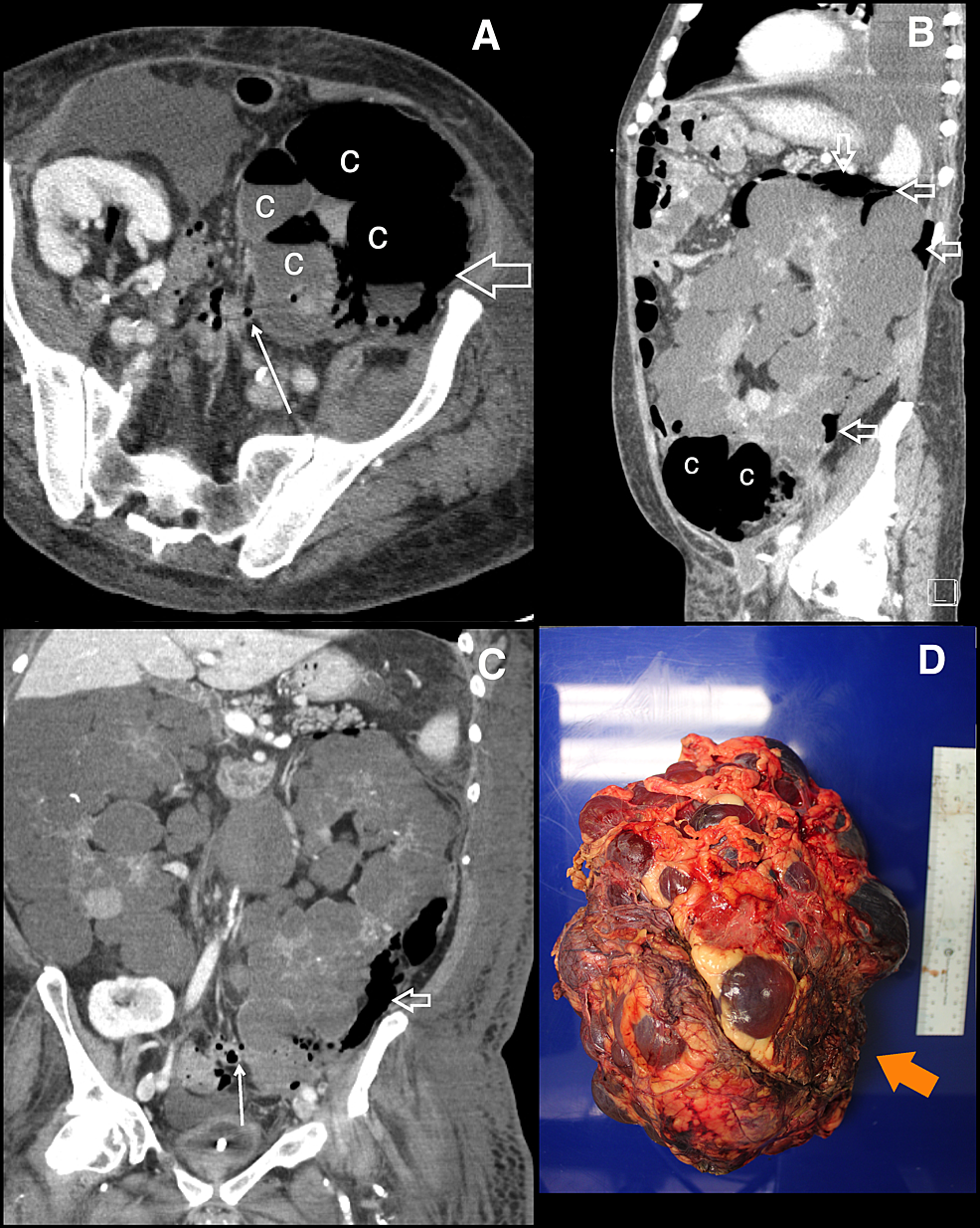 Retroperitoneal-rupture-of-infected-renal-cysts.