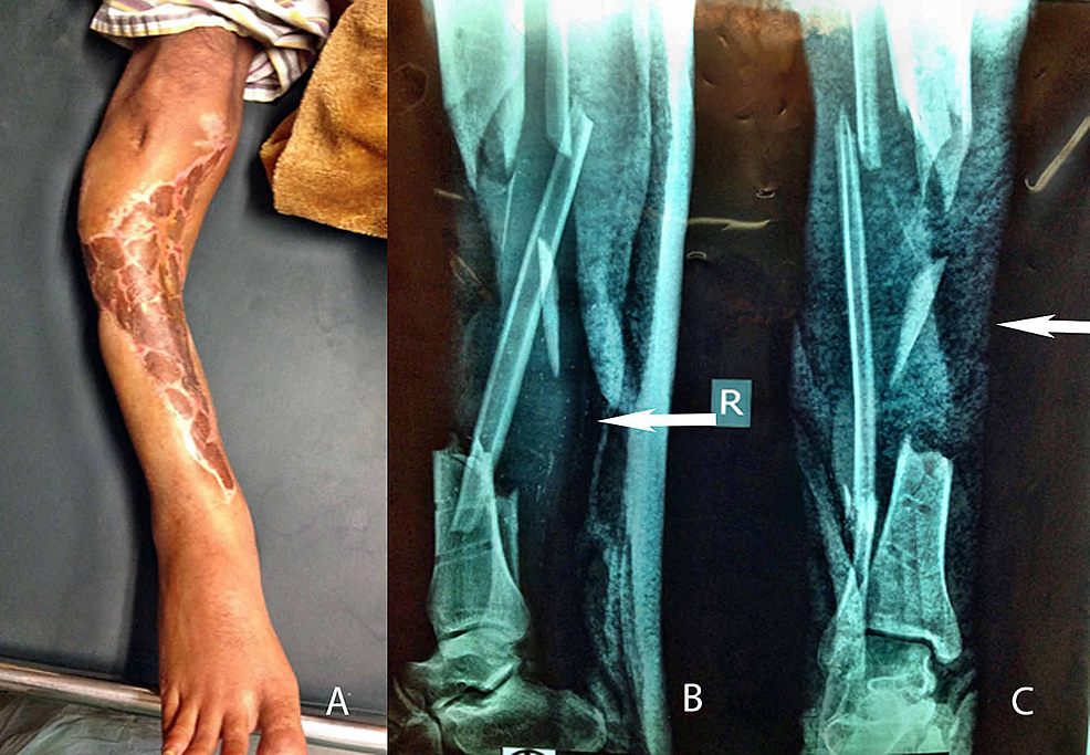 Preoperative-pictures-of-post-traumatic-bone-defect-with-a-live-view-(1A),-lateral-radiographic-view-(1B),-and-anteroposterior-radiographic-view-(1C)
