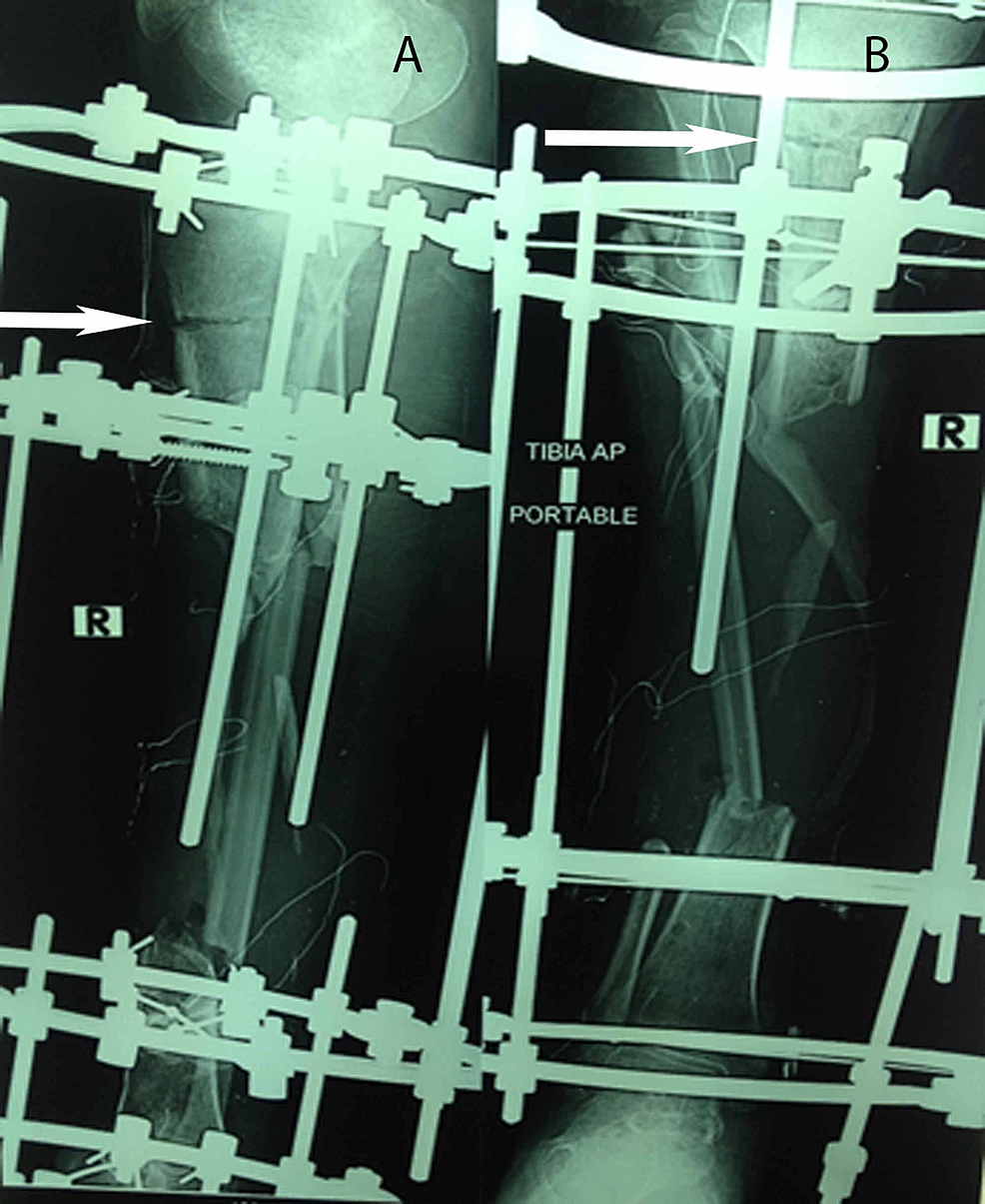 Immediate-postoperative-plain-radiographs-of-the-same-patient-who-underwent-multiple-drill-hole-osteotomy,-with-an-anteroposterior-(AP)-view-(2A)-and-a-posteroanterior-view-(2B)